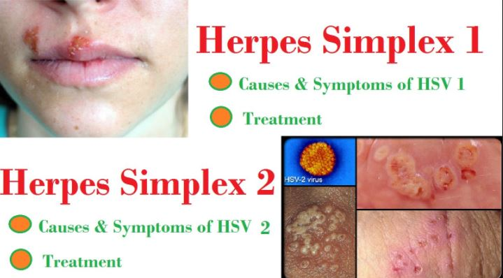 What is herpes